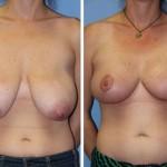 جراحی پستان